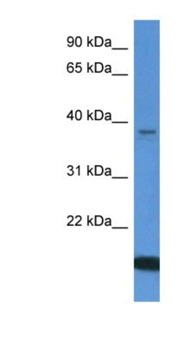 WDR54 Rabbit anti-Human, Polyclonal, Novus Biologicals 100µL; Unlabeled:Life