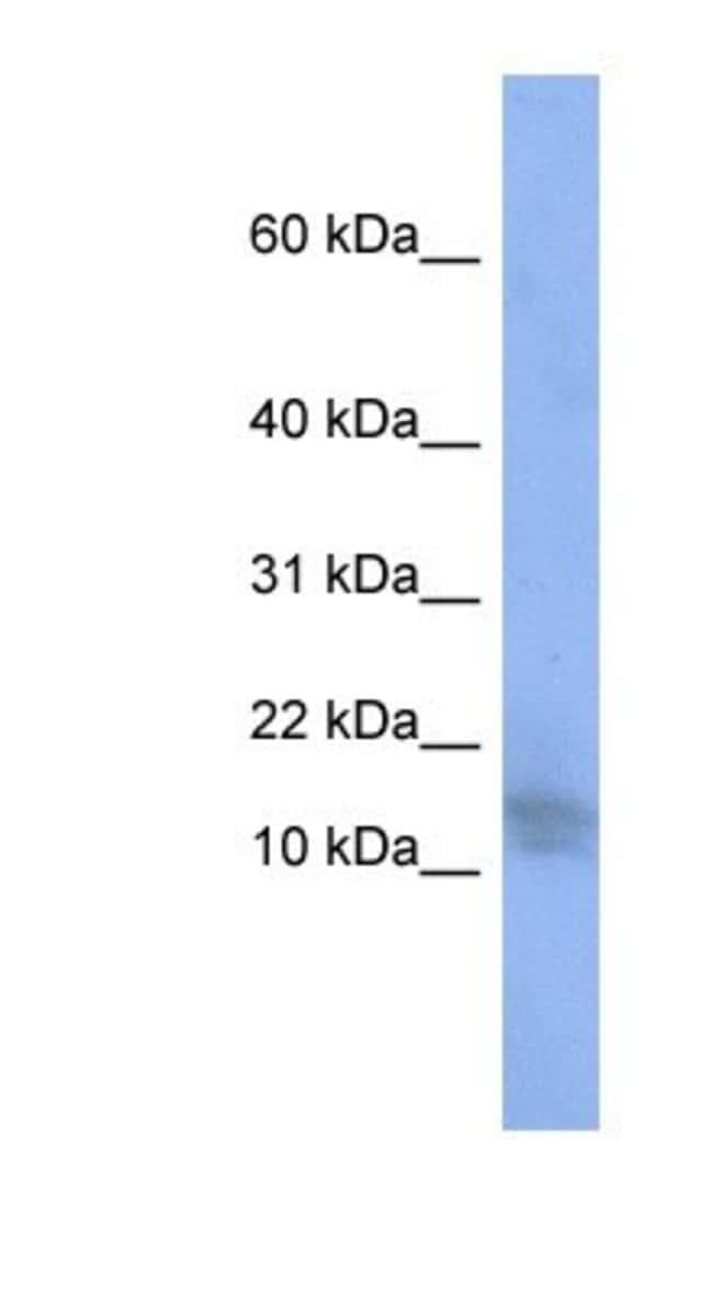 WDR9 Rabbit anti-Human, Polyclonal, Novus Biologicals 100µL; Unlabeled:Life