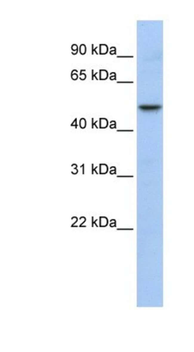 WDSUB1 Rabbit anti-Human, Polyclonal, Novus Biologicals 20µL; Unlabeled