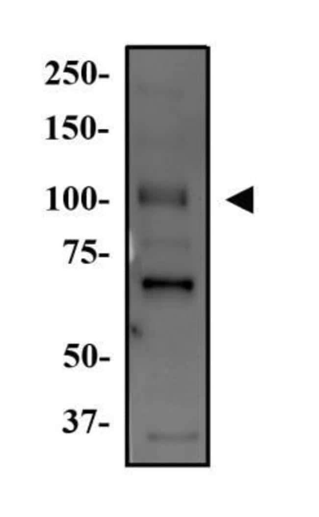 anti-WNK4, Polyclonal, Novus Biologicals:Antibodies:Primary Antibodies