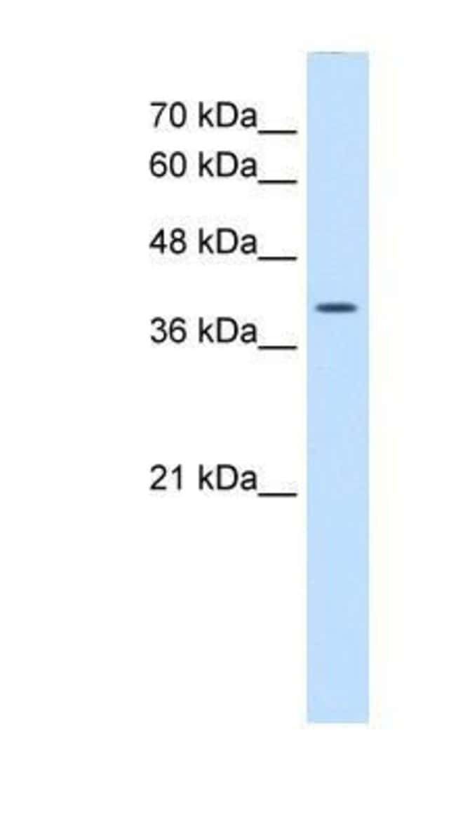 Wnt-2b Rabbit anti-Human, Polyclonal, Novus Biologicals 20µL; Unlabeled