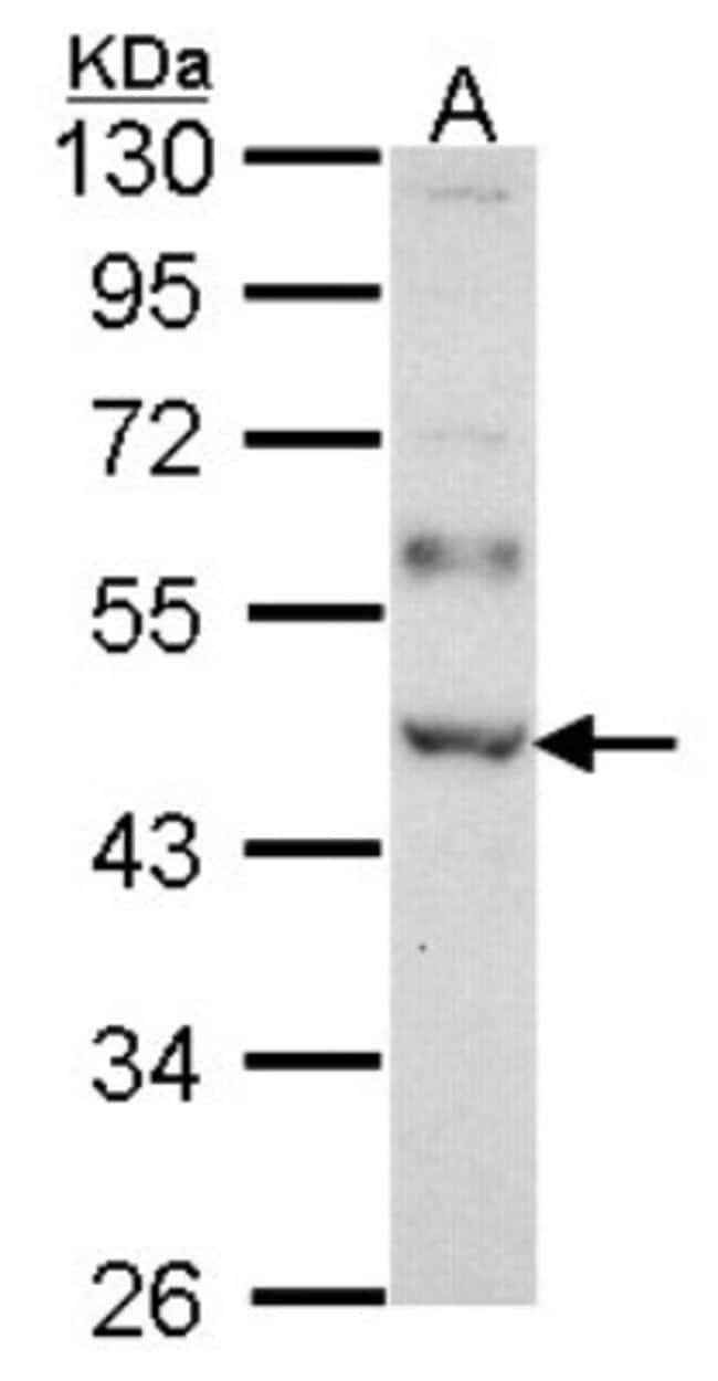 anti-WTAP, Polyclonal, Novus Biologicals 0.1mg; Unlabeled:Antibodies