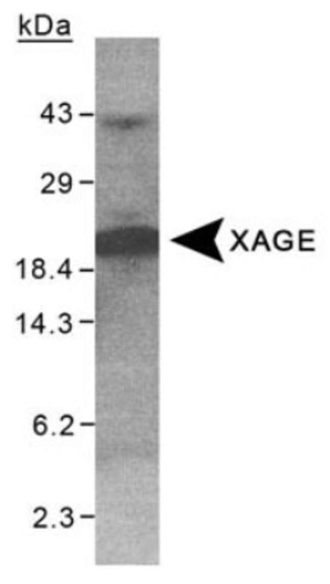 anti-XAGE1, Polyclonal, Novus Biologicals:Antibodies:Primary Antibodies