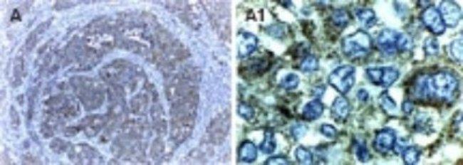 anti-XIAP, Polyclonal, Novus Biologicals:Antibodies:Primary Antibodies