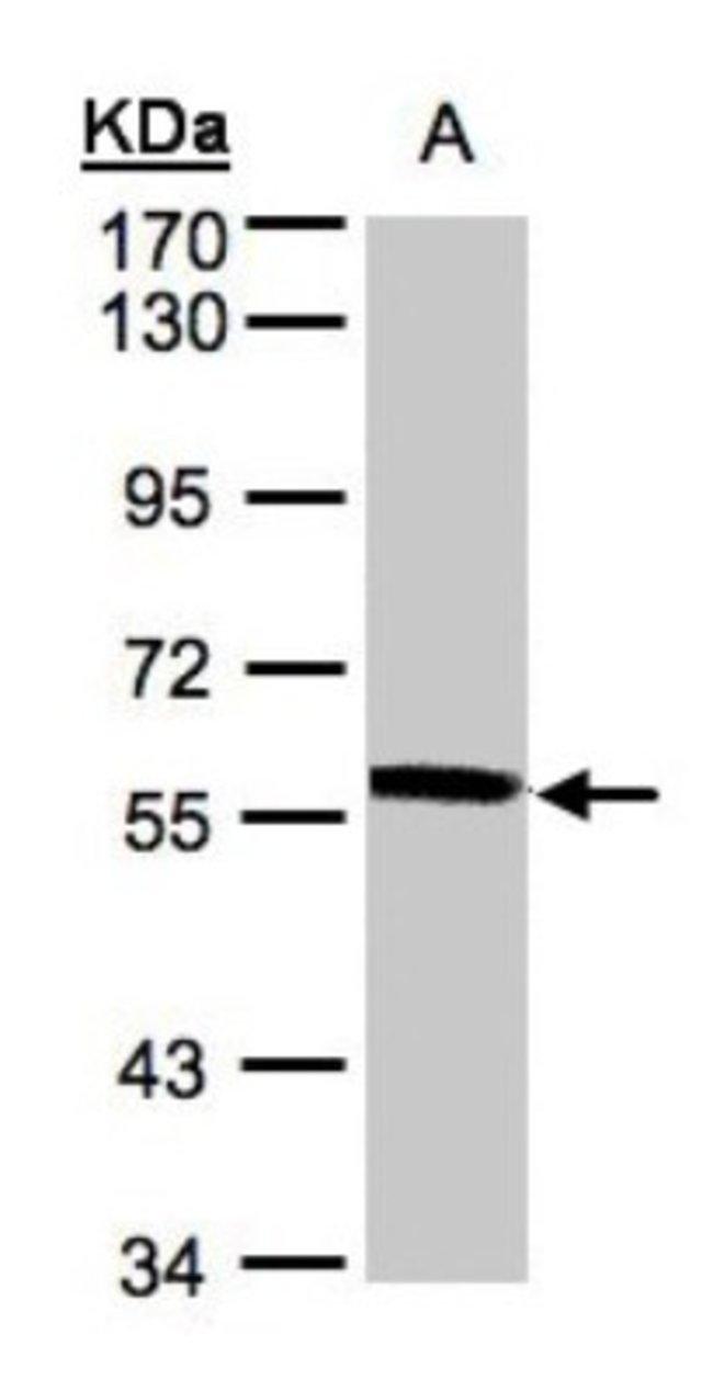 anti-XPNPEP3, Polyclonal, Novus Biologicals 0.1mg; Unlabeled:Life Sciences