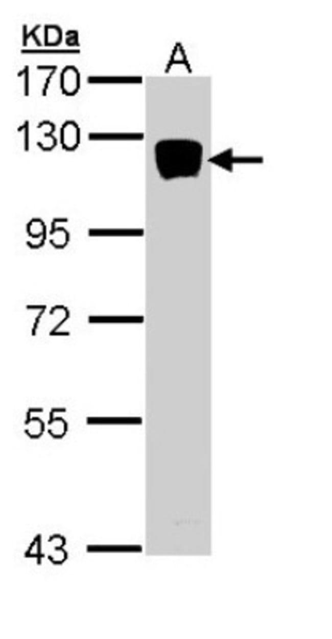 anti-XYLT2, Polyclonal, Novus Biologicals 0.1mg; Unlabeled:Antibodies