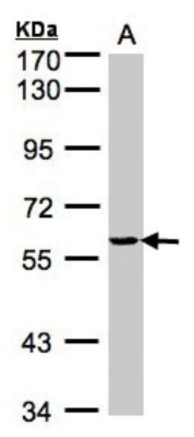 anti-YARS, Polyclonal, Novus Biologicals 0.1mL; Unlabeled:Antibodies