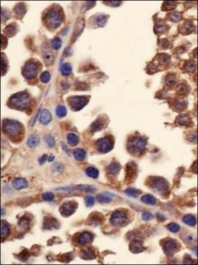 anti-YB1, Polyclonal, Novus Biologicals:Antibodies:Primary Antibodies