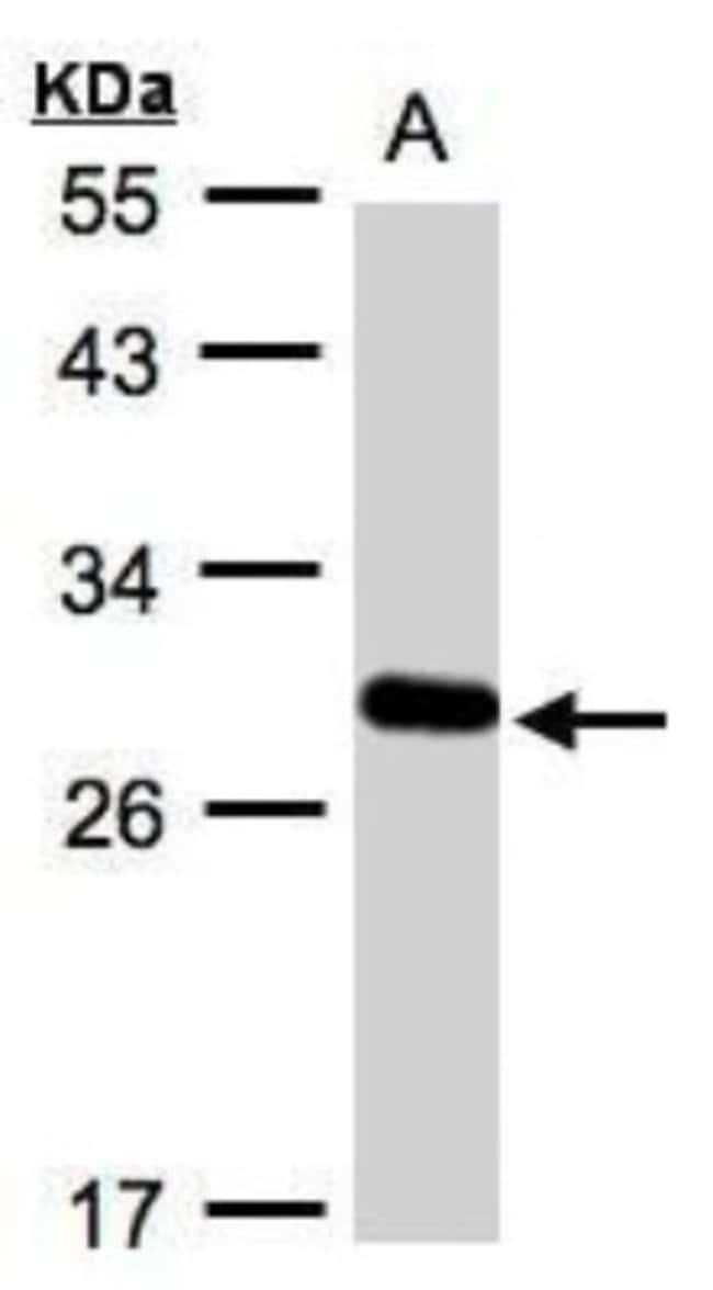 anti-YIPF4, Polyclonal, Novus Biologicals 0.1mg; Unlabeled:Antibodies