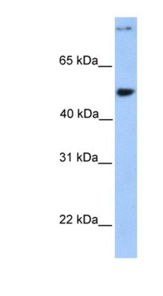 Ymer Rabbit anti-Human, Polyclonal, Novus Biologicals 100µL; Unlabeled:Life