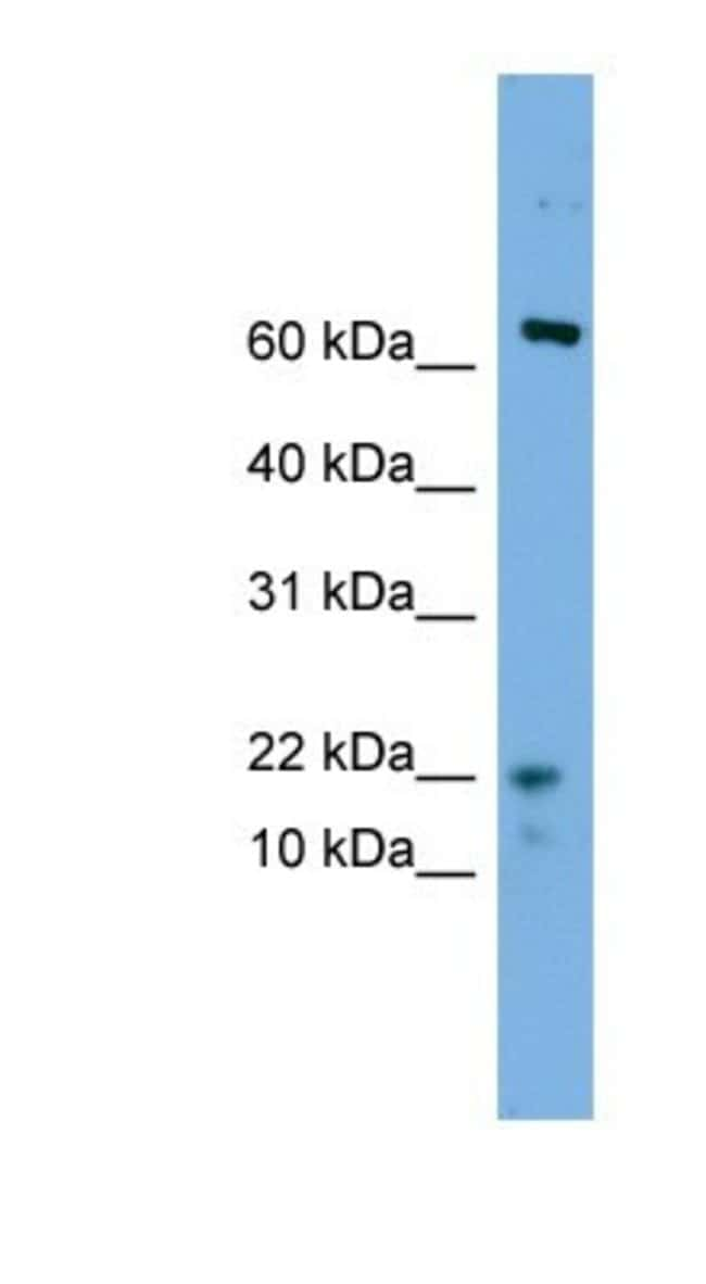 YPEL5 Rabbit anti-Human, Polyclonal, Novus Biologicals 20µL; Unlabeled