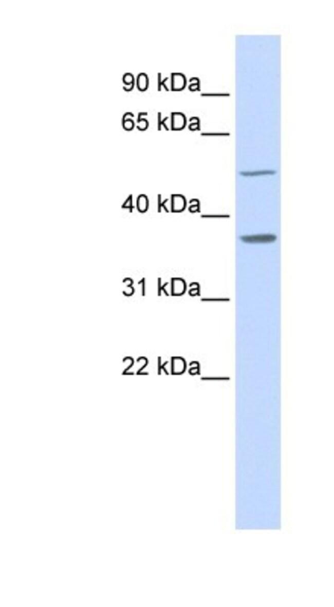 ZADH1 Rabbit anti-Human, Polyclonal, Novus Biologicals 100µL; Unlabeled:Life