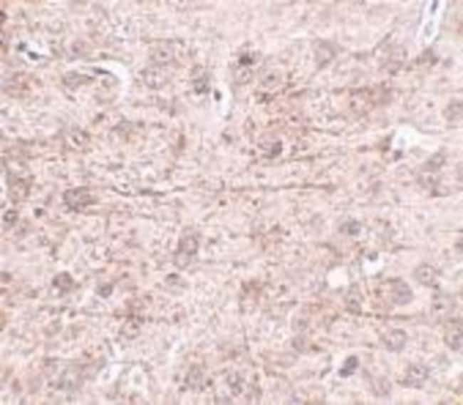 anti-ZBTB1, Polyclonal, Novus Biologicals 0.1mg; Unlabeled:Life Sciences