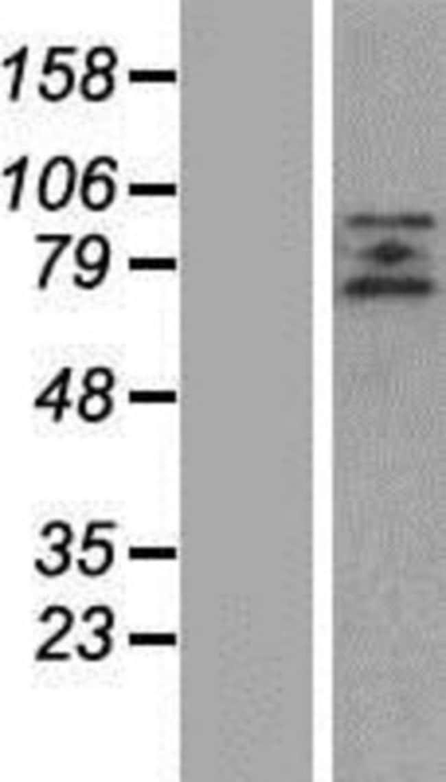 Novus Biologicals ZBTB20 Overexpression Lysate (Native) 0.1mg:Life Sciences