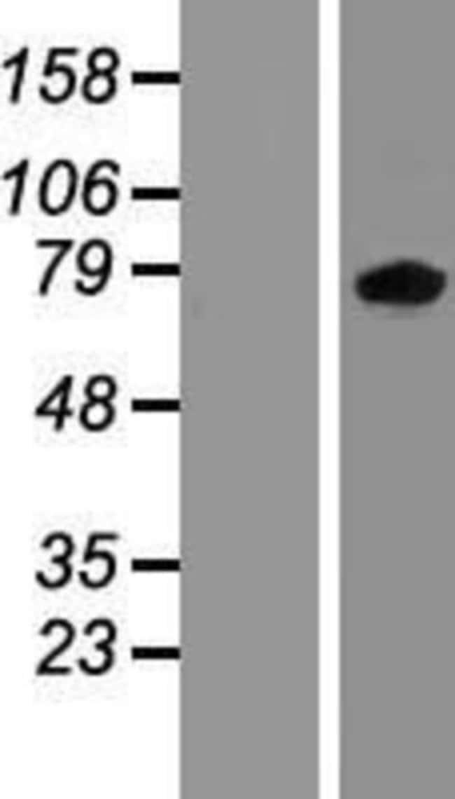 Novus Biologicals ZBTB24 Overexpression Lysate (Native) 0.1mg:Life Sciences