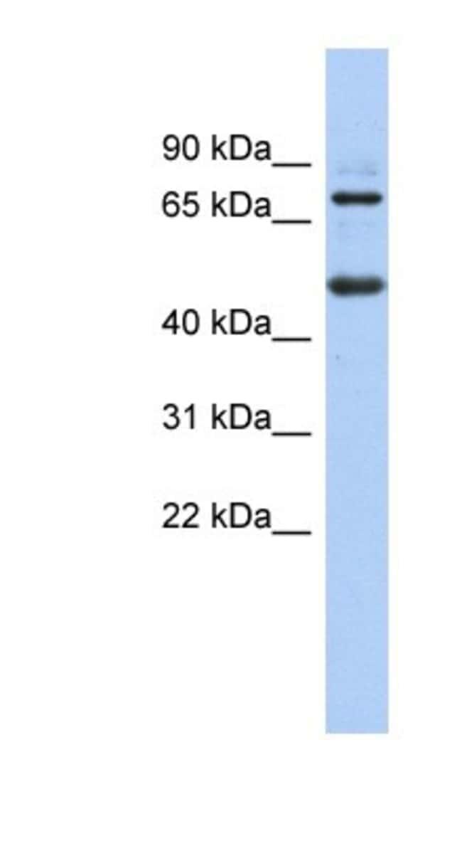 ZBTB26 Rabbit anti-Human, Polyclonal, Novus Biologicals 20µL; Unlabeled