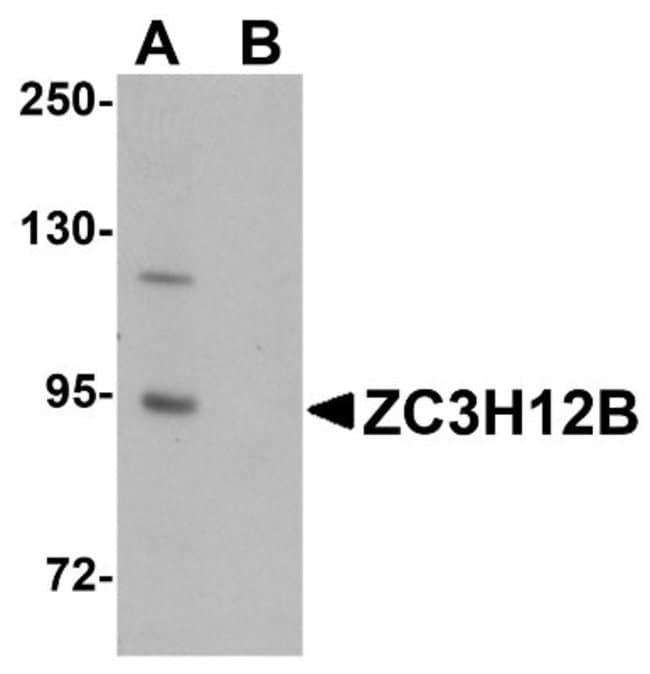 anti-ZC3H12B, Polyclonal, Novus Biologicals 0.1mg; Unlabeled:Life Sciences