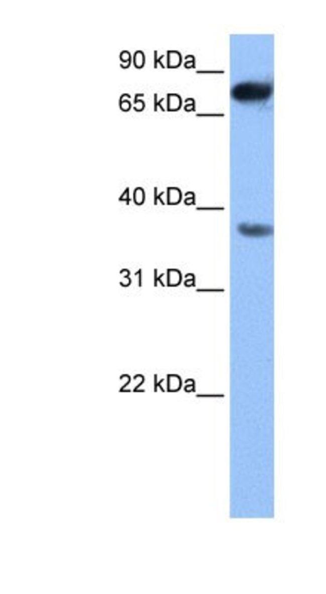ZCCHC12 Rabbit anti-Human, Polyclonal, Novus Biologicals 20µL; Unlabeled