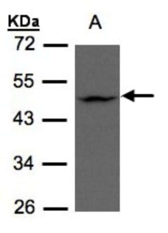anti-ZDHHC13, Polyclonal, Novus Biologicals 0.1mg; Unlabeled:Life Sciences