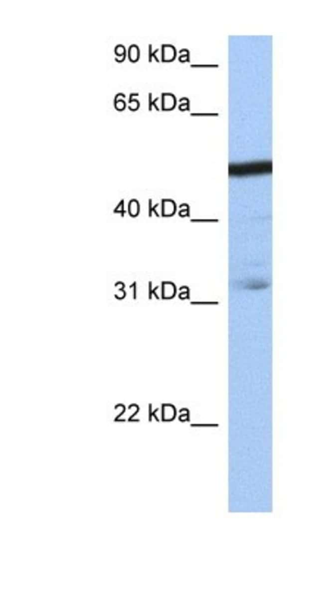ZFP14 Rabbit anti-Human, Polyclonal, Novus Biologicals 20µL; Unlabeled