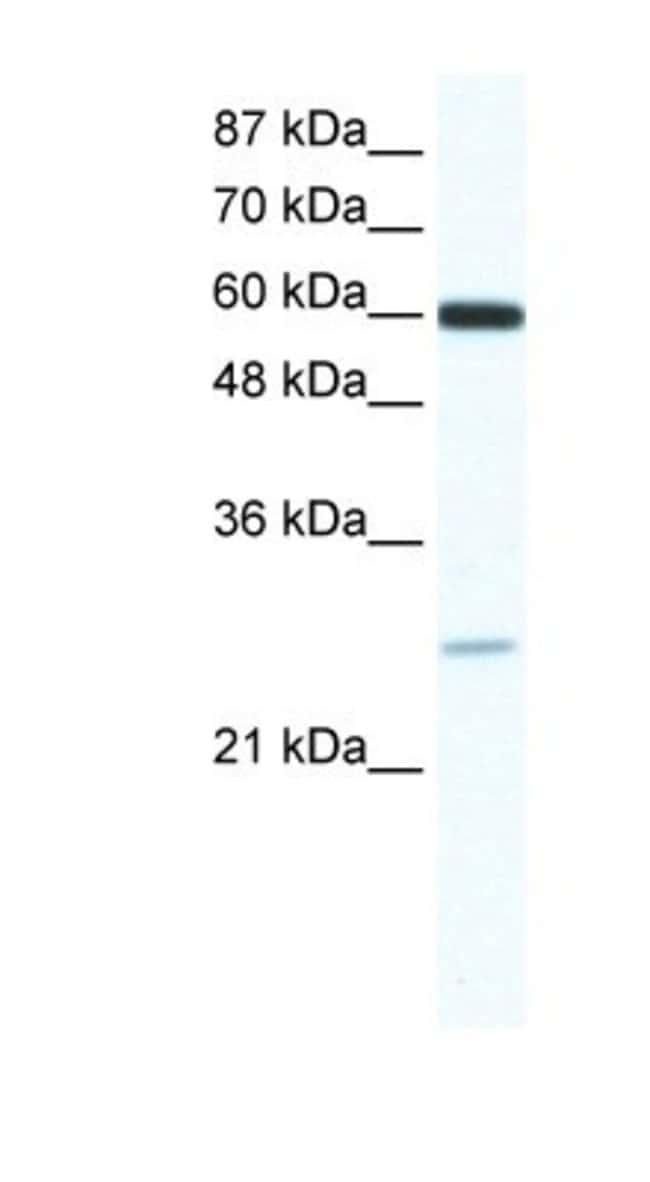 ZFP91 Rabbit anti-Human, Polyclonal, Novus Biologicals 20µL; Unlabeled
