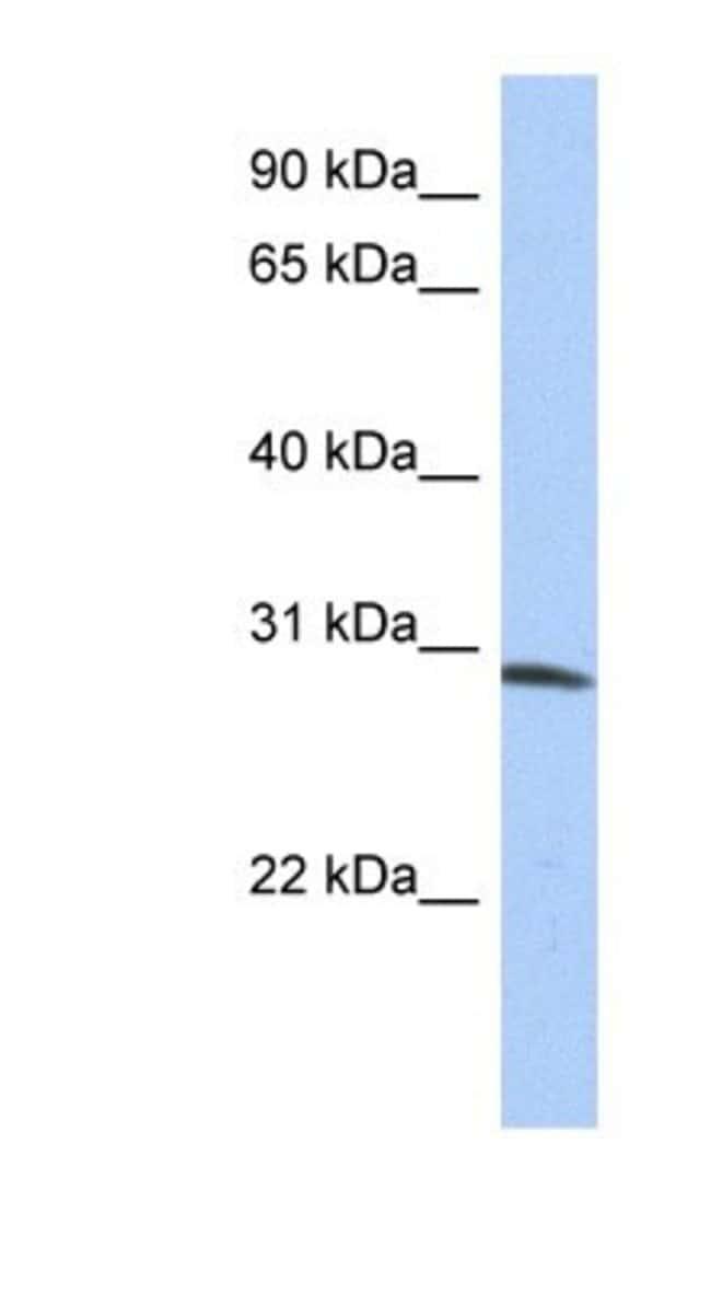 ZFYVE28 Rabbit anti-Human, Polyclonal, Novus Biologicals 100µL; Unlabeled:Life