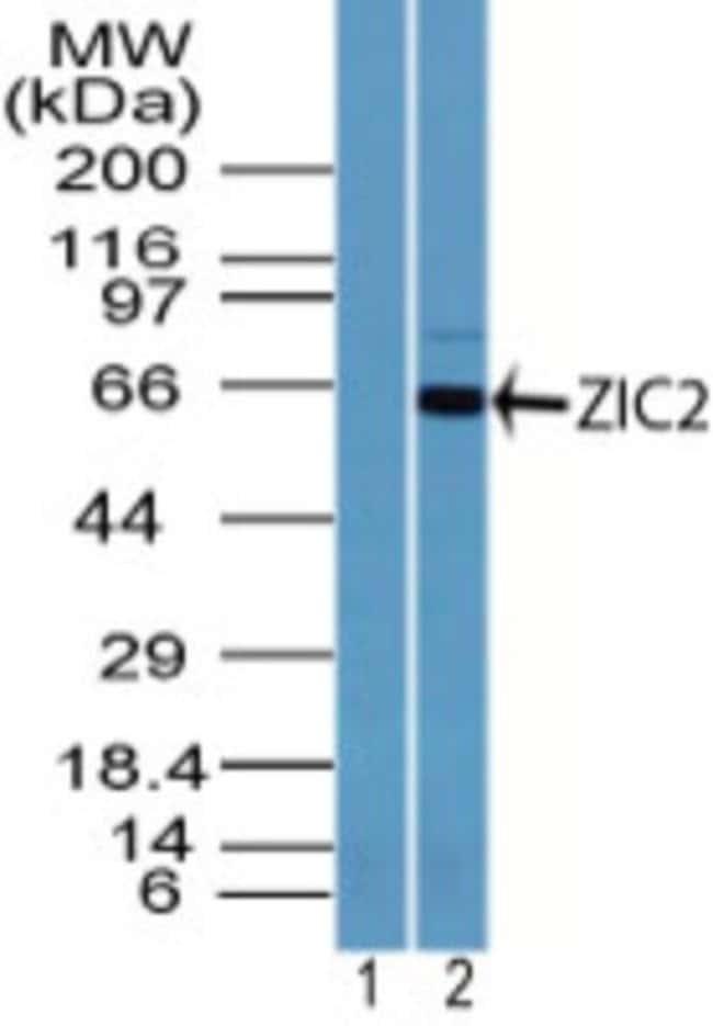 anti-Zic2, Polyclonal, Novus Biologicals:Antibodies:Primary Antibodies