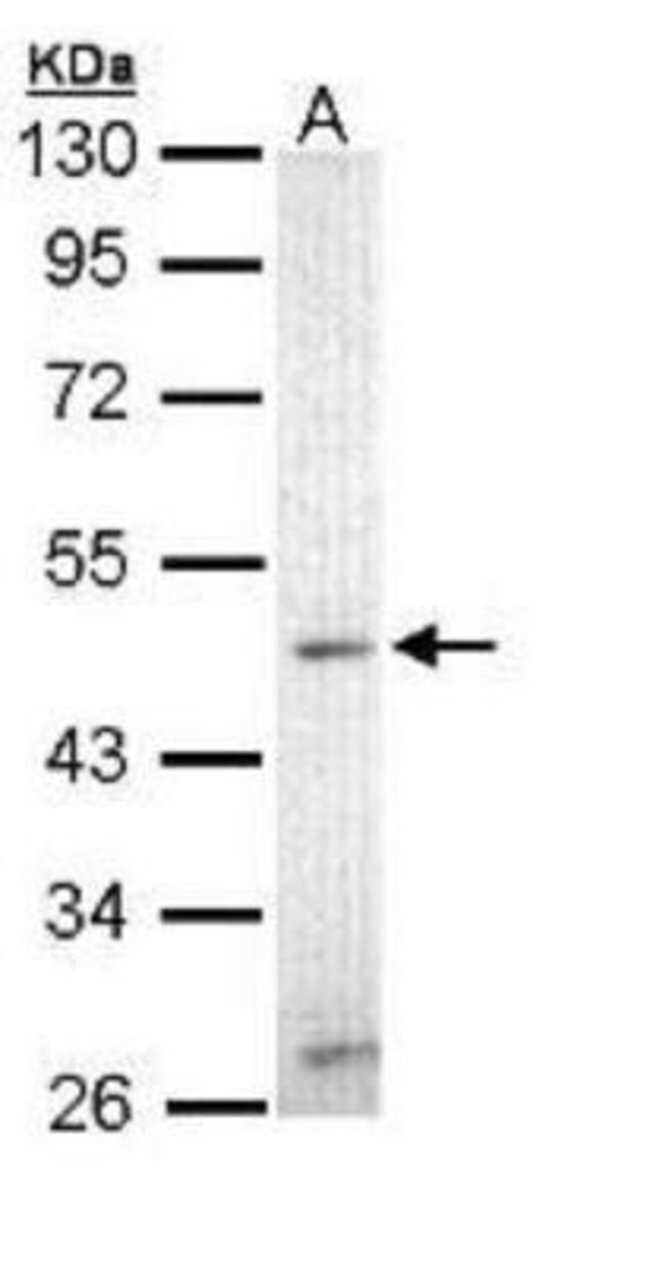 anti-ZIC3, Polyclonal, Novus Biologicals 0.1mL; Unlabeled:Life Sciences
