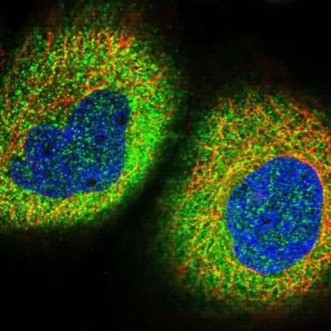 anti-Zinc finger protein 772, Polyclonal, Novus Biologicals 0.1mL; Unlabeled:Life