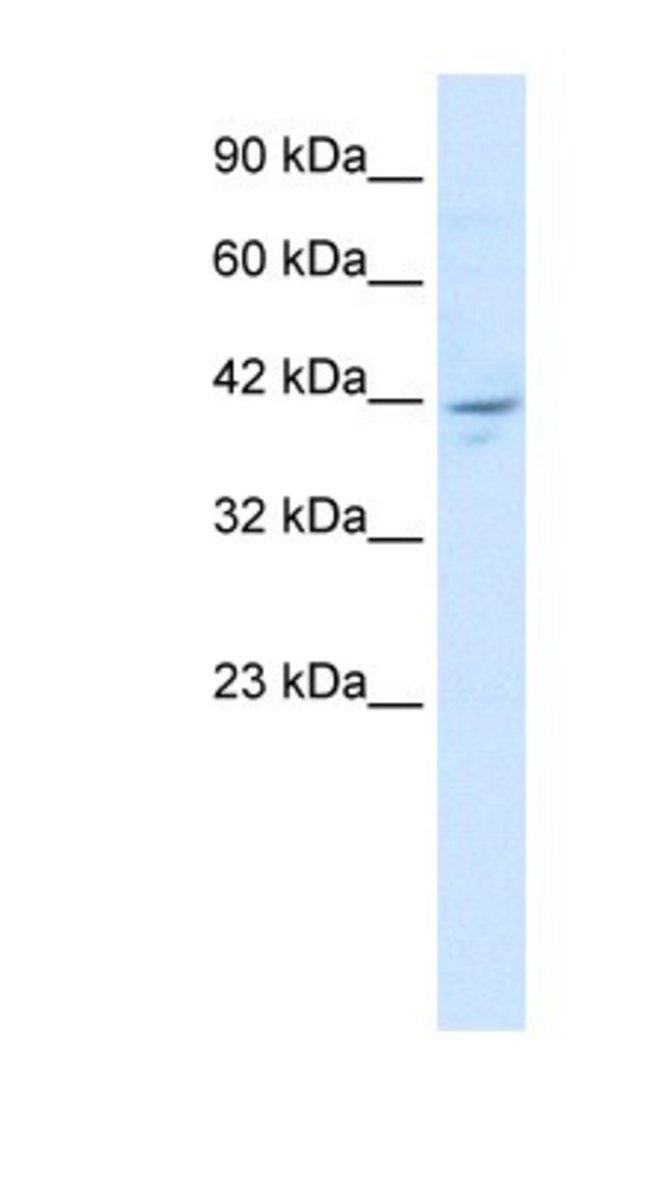 ZMYM5 Rabbit anti-Human, Polyclonal, Novus Biologicals 20µL; Unlabeled