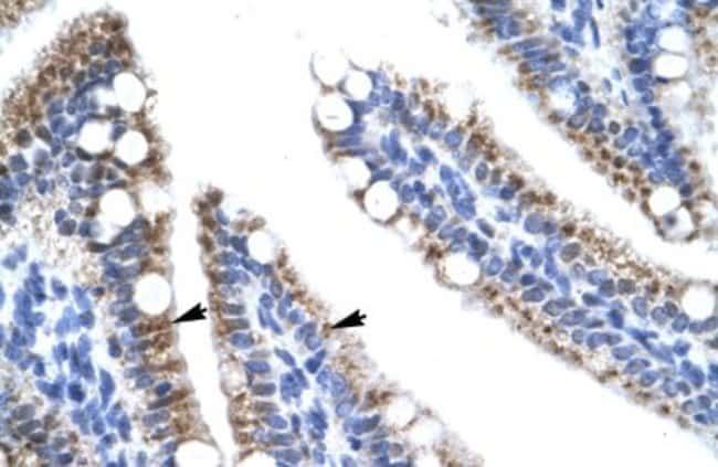 ZNF12 Rabbit anti-Human, Polyclonal, Novus Biologicals 100µL; Unlabeled:Life