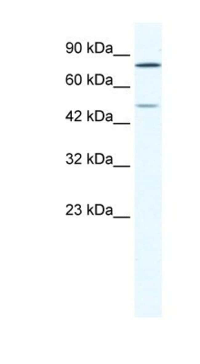 ZNF12 Rabbit anti-Human, Polyclonal, Novus Biologicals 20µL; Unlabeled