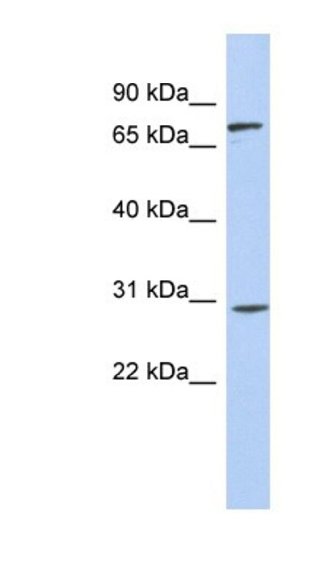 ZNF131 Rabbit anti-Human, Polyclonal, Novus Biologicals 20µL; Unlabeled