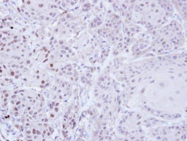 anti-ZNF165, Polyclonal, Novus Biologicals 0.1mg; Unlabeled:Life Sciences