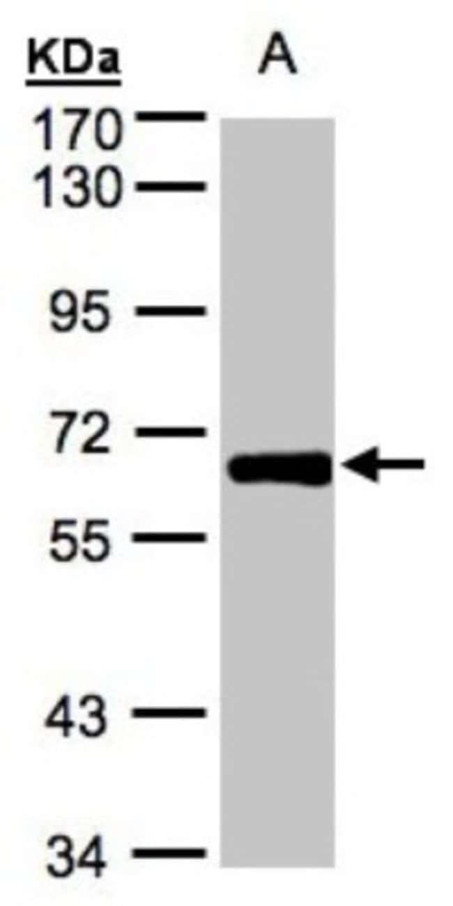 anti-ZNF169, Polyclonal, Novus Biologicals 0.1mL; Unlabeled:Life Sciences