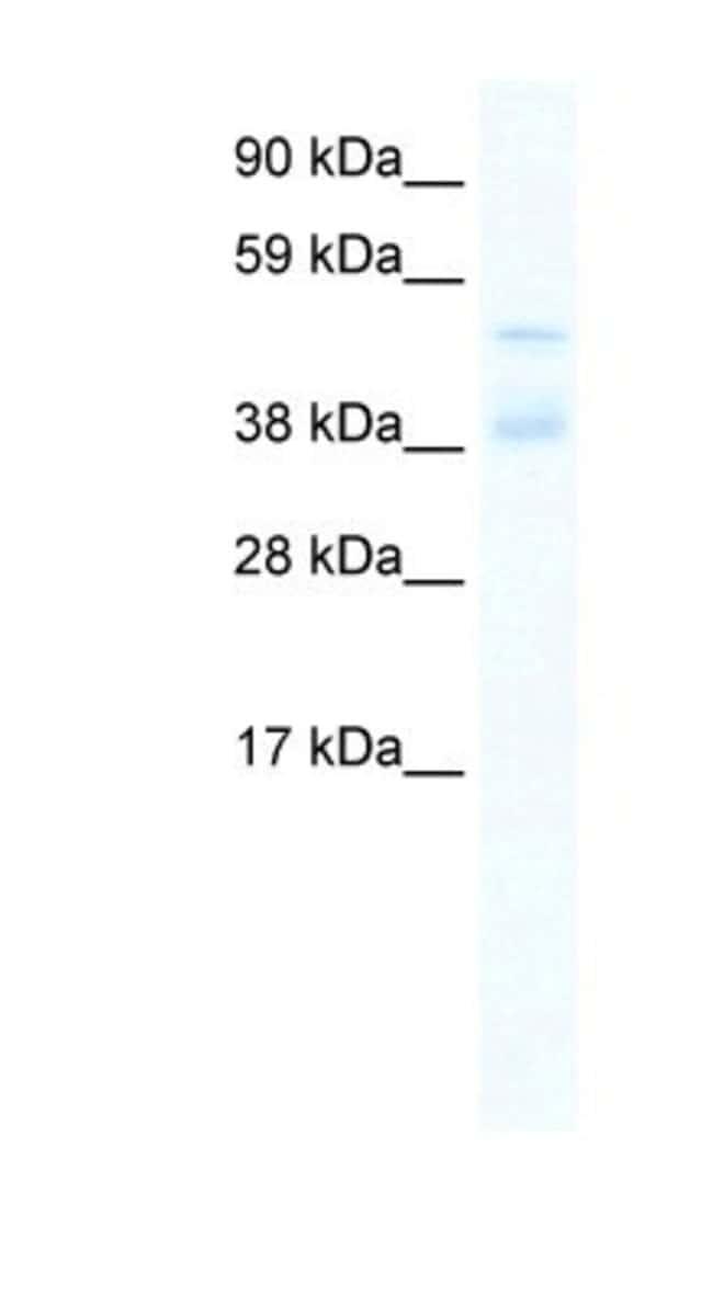 ZNF17 Rabbit anti-Human, Polyclonal, Novus Biologicals 20µL; Unlabeled