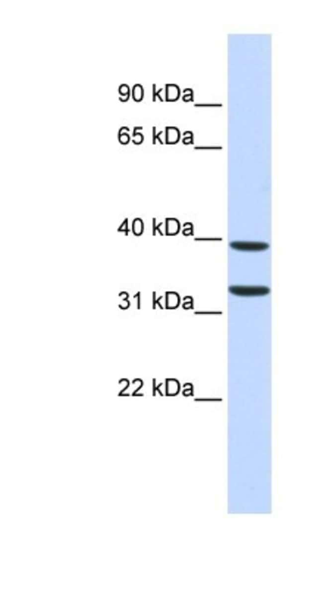 ZNF177 Rabbit anti-Human, Polyclonal, Novus Biologicals 100µL; Unlabeled:Life