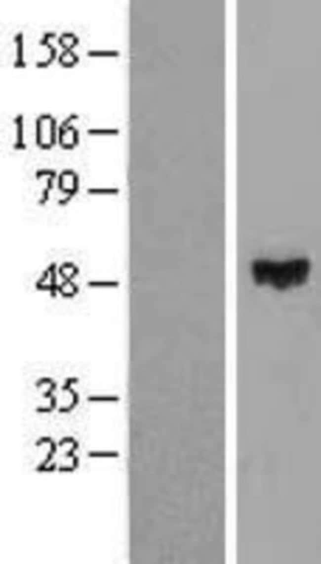 Novus Biologicals ZNF193 Overexpression Lysate (Native) 0.1mg:Life Sciences