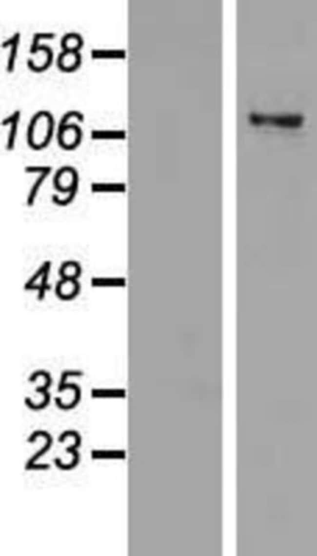 Novus Biologicals ZNF217 Overexpression Lysate (Native) 0.1mg:Life Sciences