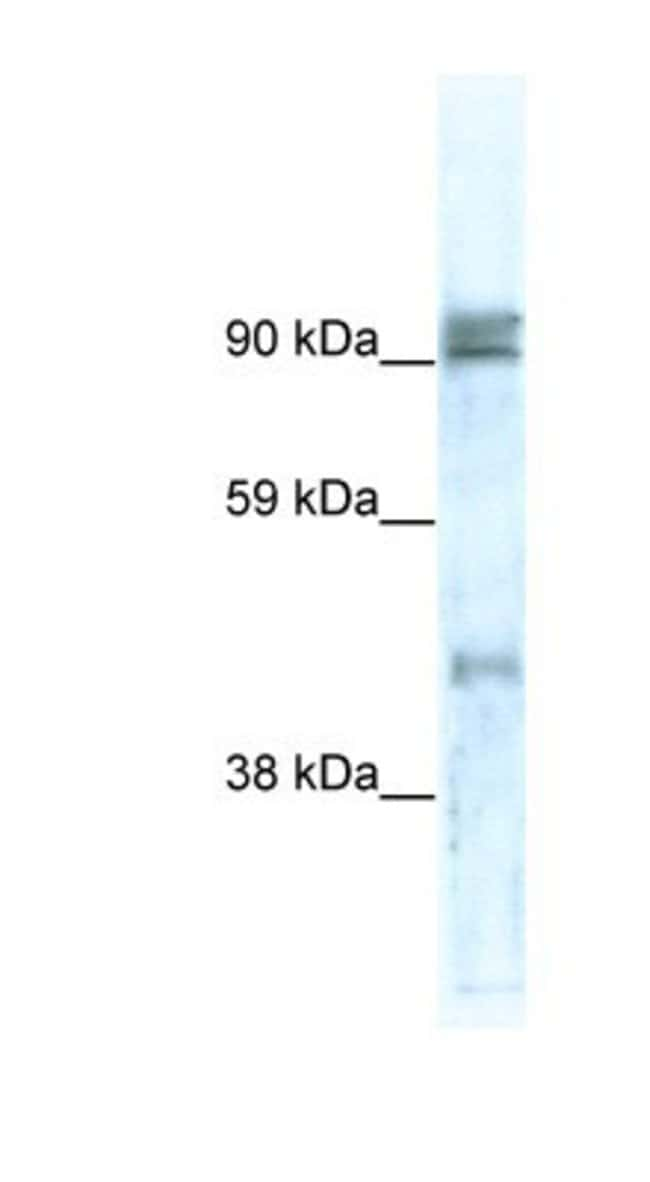 ZNF227 Rabbit anti-Human, Polyclonal, Novus Biologicals 20µL; Unlabeled