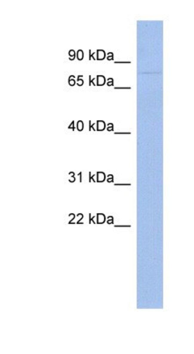 ZNF233 Rabbit anti-Human, Rat, Polyclonal, Novus Biologicals 100µL;