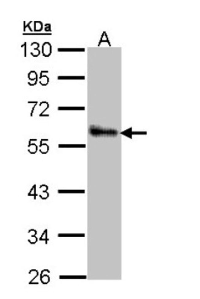 anti-ZNF259, Polyclonal, Novus Biologicals 0.1mL; Unlabeled:Life Sciences