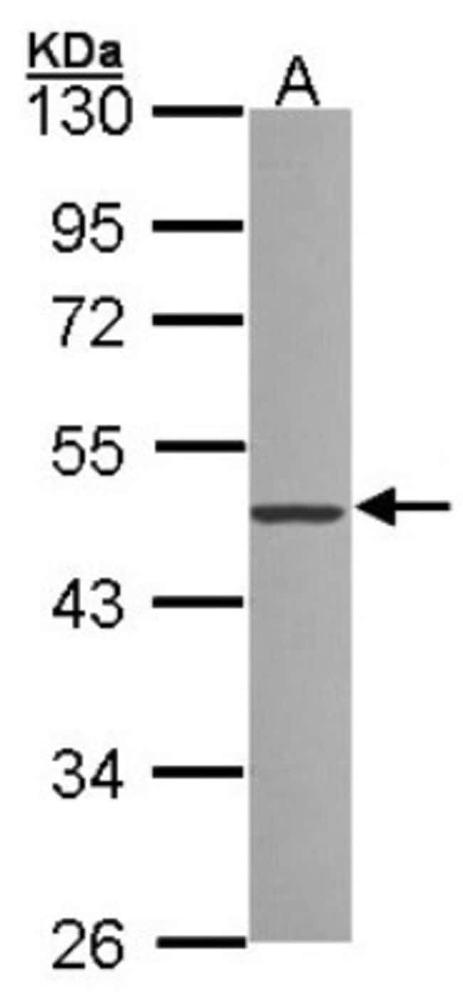 anti-ZNF277, Polyclonal, Novus Biologicals 0.1mg; Unlabeled:Life Sciences
