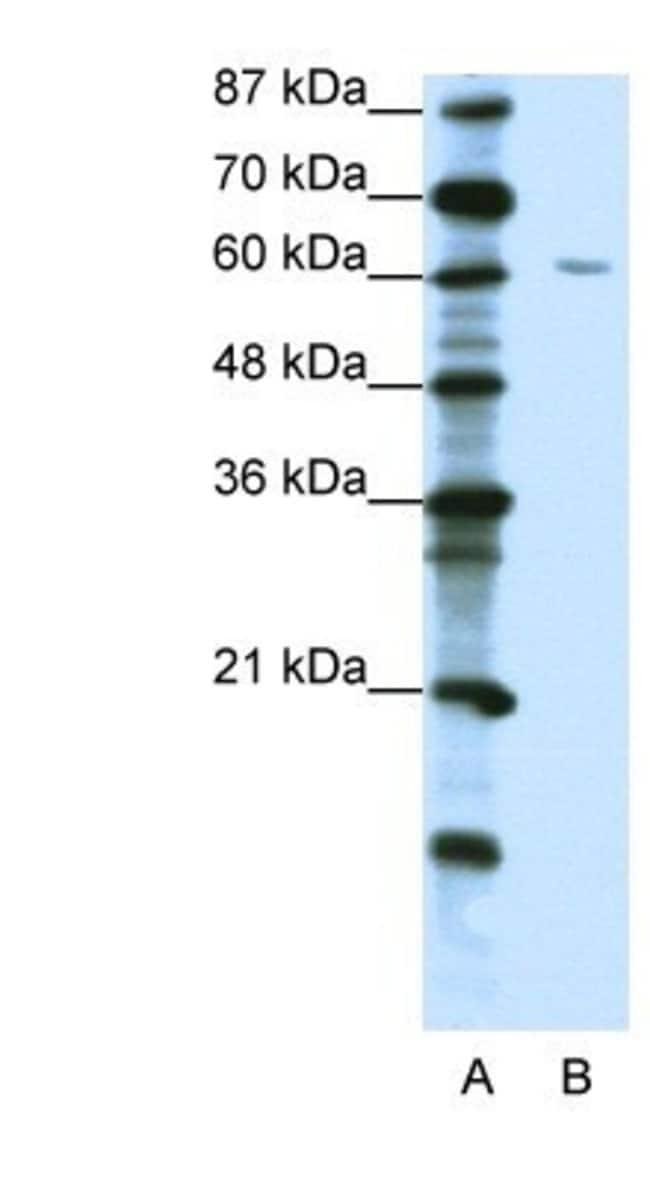 ZNF286 Rabbit anti-Human, Polyclonal, Novus Biologicals 100µL; Unlabeled:Life