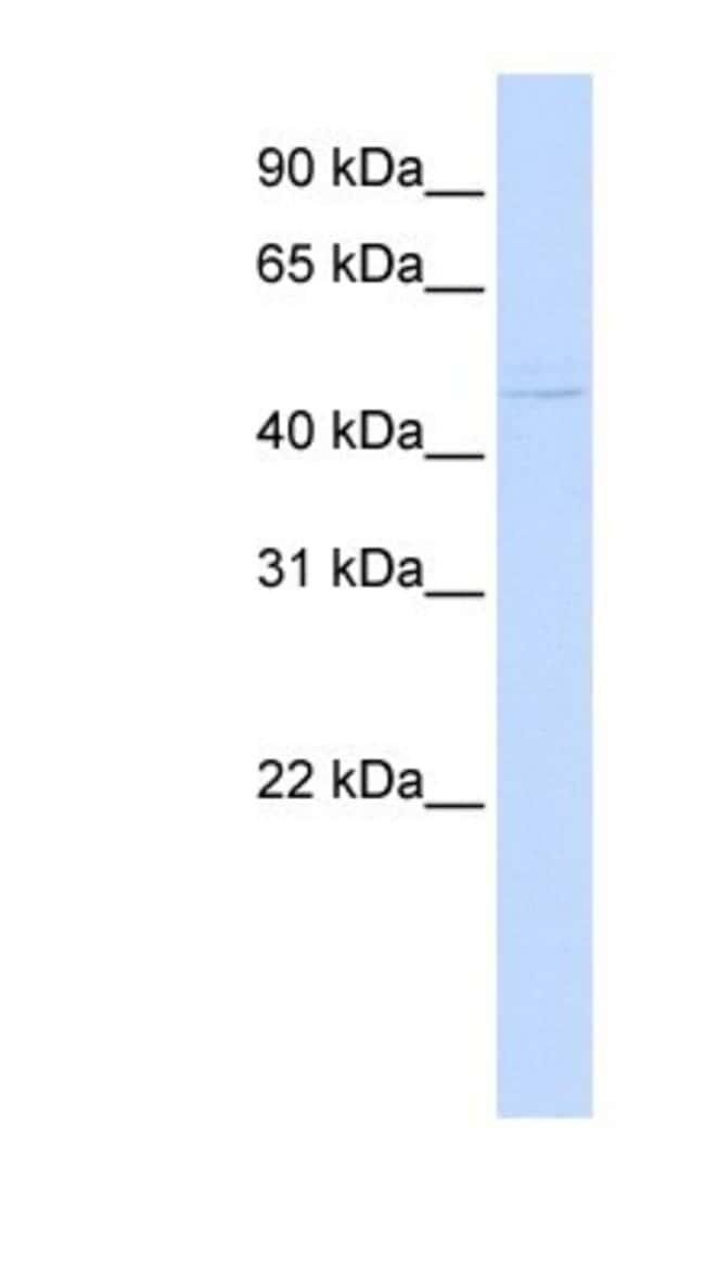 ZNF297B Rabbit anti-Human, Polyclonal, Novus Biologicals 100µL; Unlabeled:Life