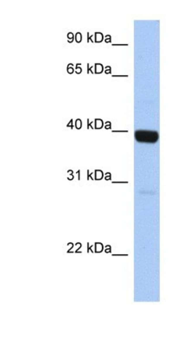 ZNF385B Rabbit anti-Human, Polyclonal, Novus Biologicals 100µL; Unlabeled:Life
