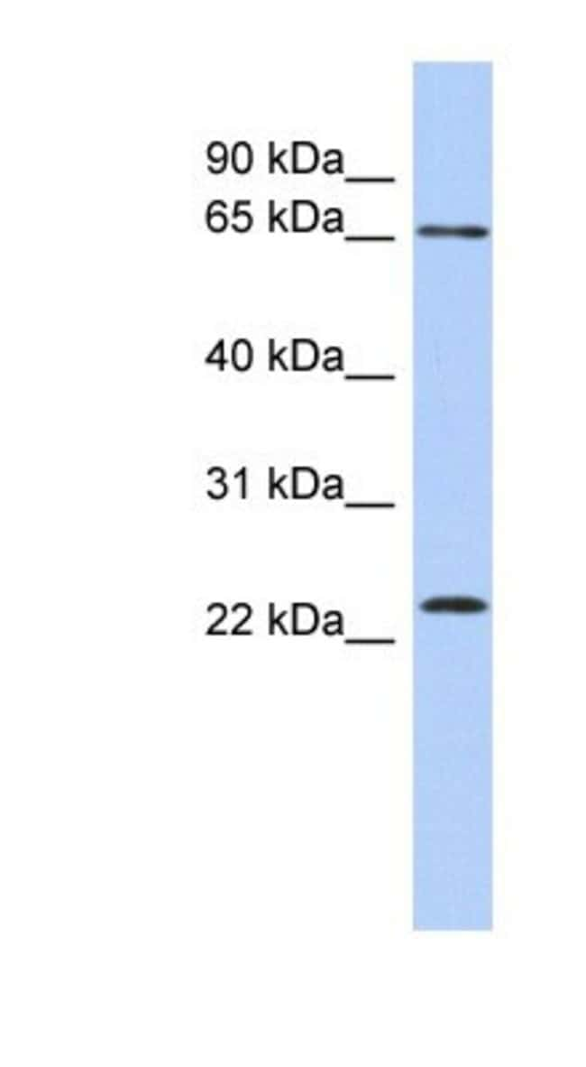 ZNF428 Rabbit anti-Human, Polyclonal, Novus Biologicals 100µL; Unlabeled:Life