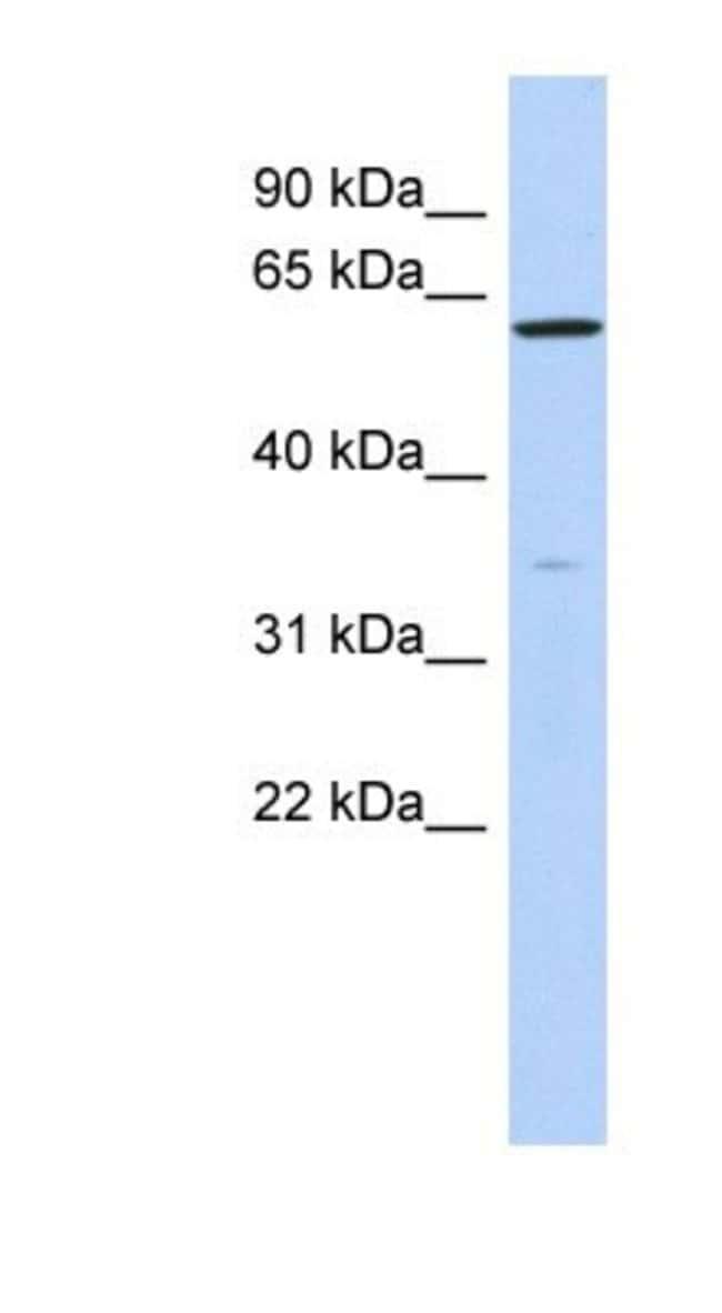 ZNF431 Rabbit anti-Human, Polyclonal, Novus Biologicals 100µL; Unlabeled:Life