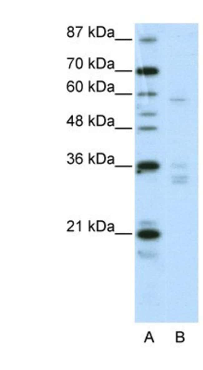 ZNF440 Rabbit anti-Human, Polyclonal, Novus Biologicals 100µL; Unlabeled:Life