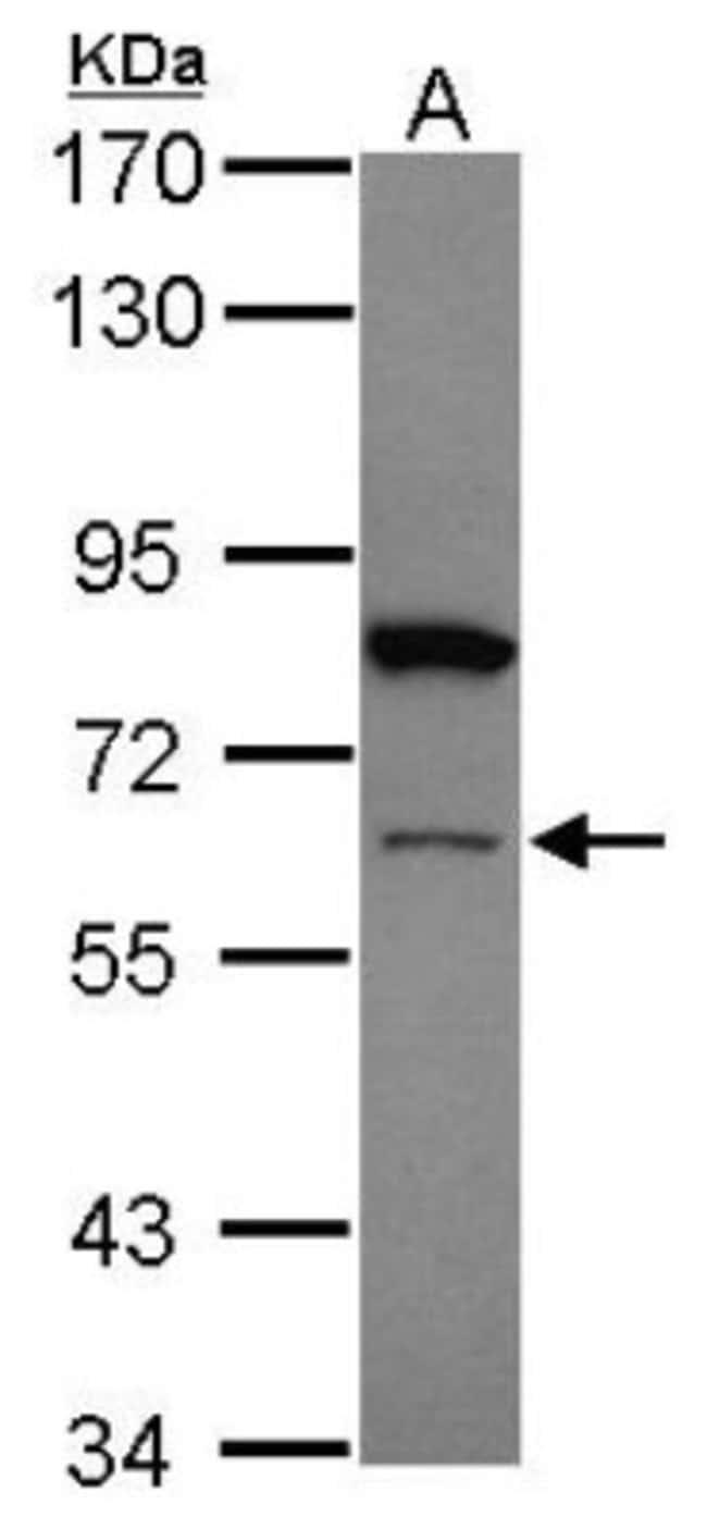 anti-ZNF449, Polyclonal, Novus Biologicals 0.1mL; Unlabeled:Life Sciences